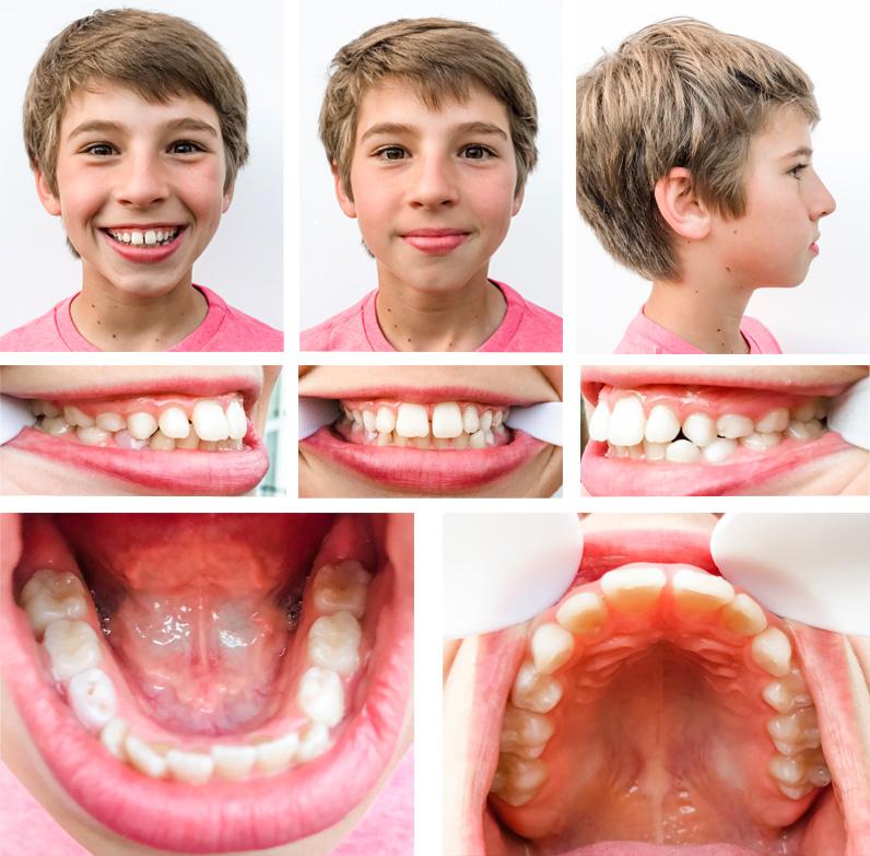 virtual orthodontics consultation