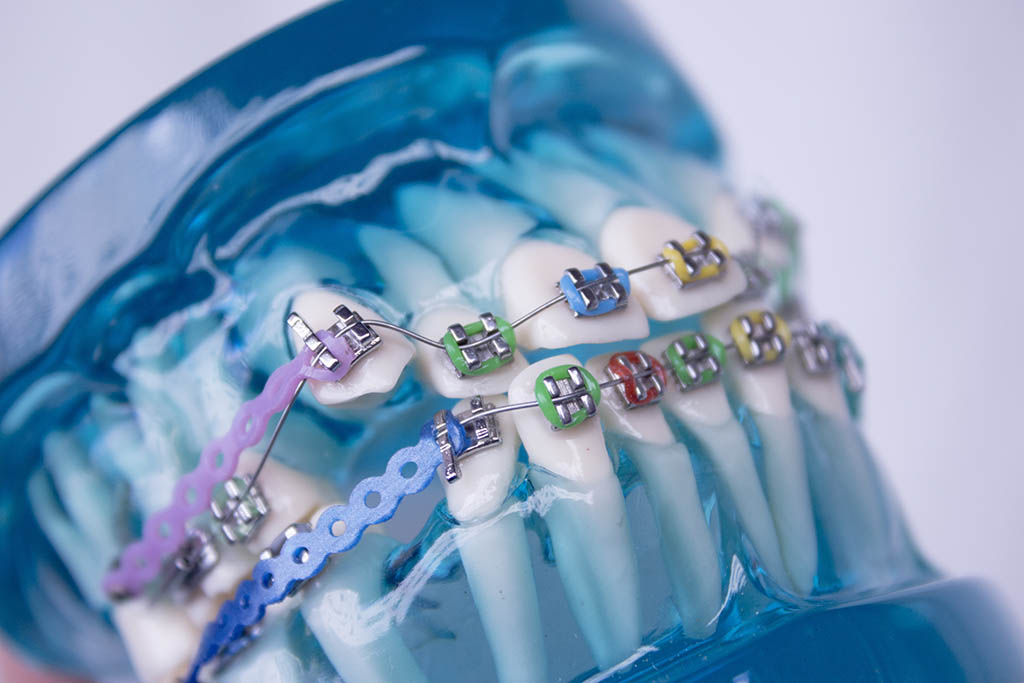 Braces come in over 80 different colors, including black, white, red, blue, green and purple, as well as more exotic colors such as glow in the dark, metallic gold and tooth colored. You can mix and match these colors and change them every adjustment.