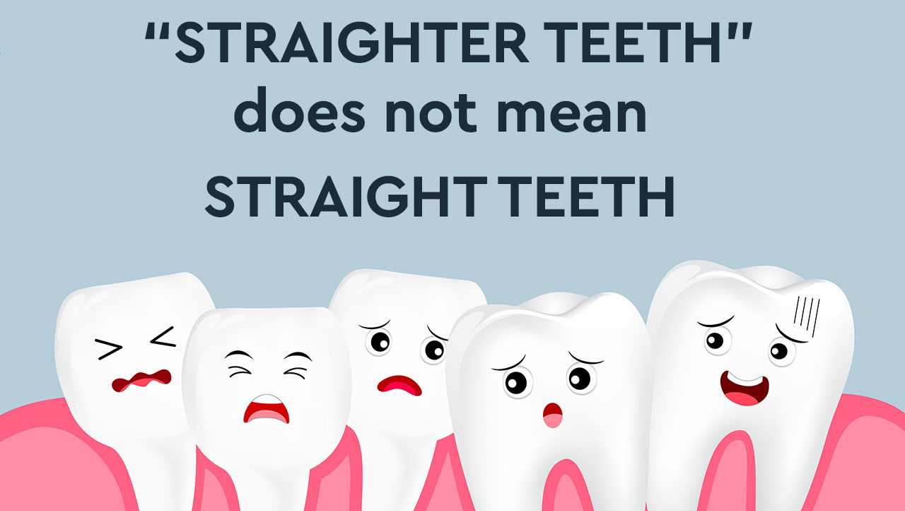 Mail order aligners - straighter teeth dos not mean Straight teeth